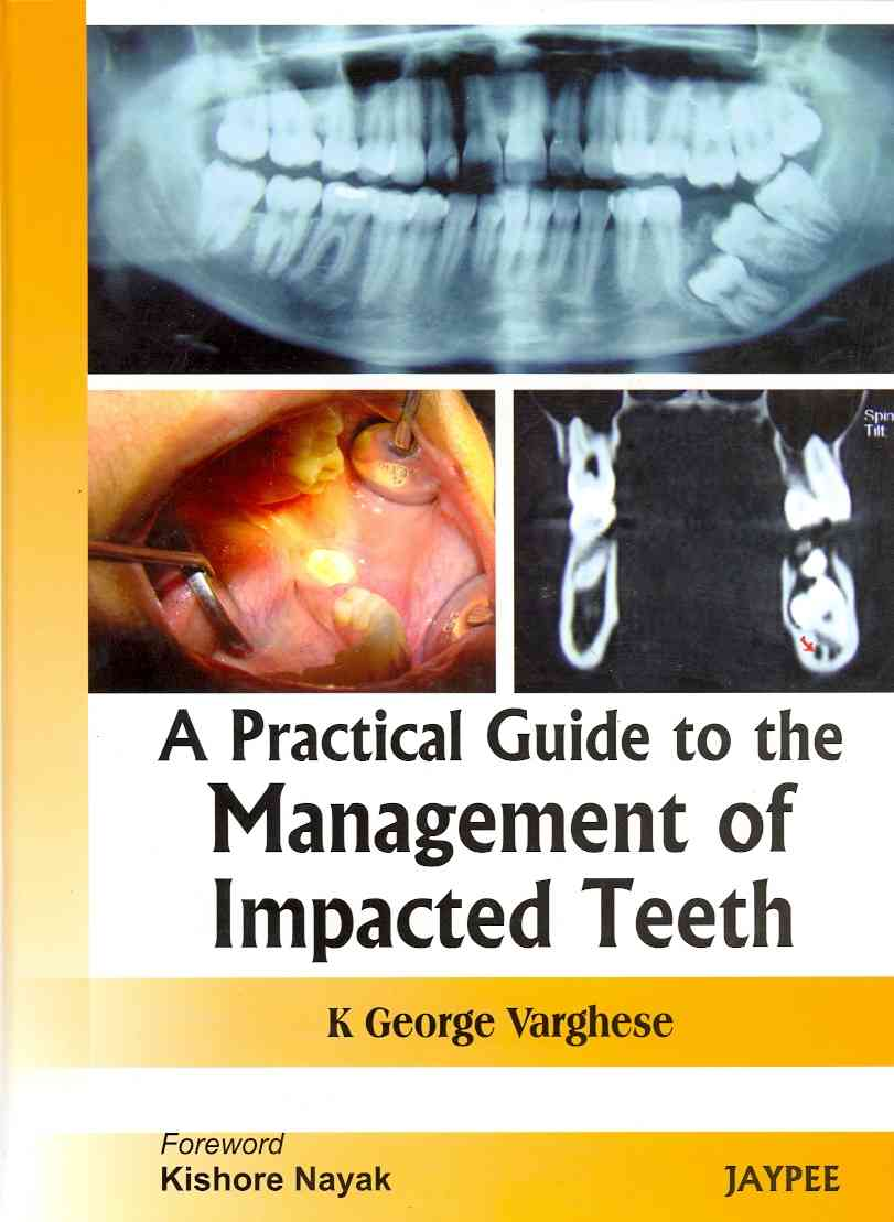 A Practical Guide to the Management of Impacted Teeth By Varghese, George K.